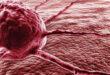 Врачи рассказали может ли рак передаваться по наследству